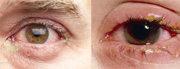 Почему из глаз выделяется липкая жидкость. Выделения из глаз: причины и лечение