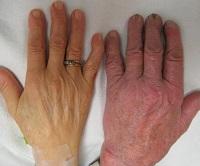 Анализ эритроцитов в крови человека. Норма и патологии