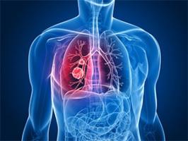 Повышение соэ на начальной стадии рака. Уровень СОЭ при онкологии. Последствия при изменении плотности оседания эритроцитов