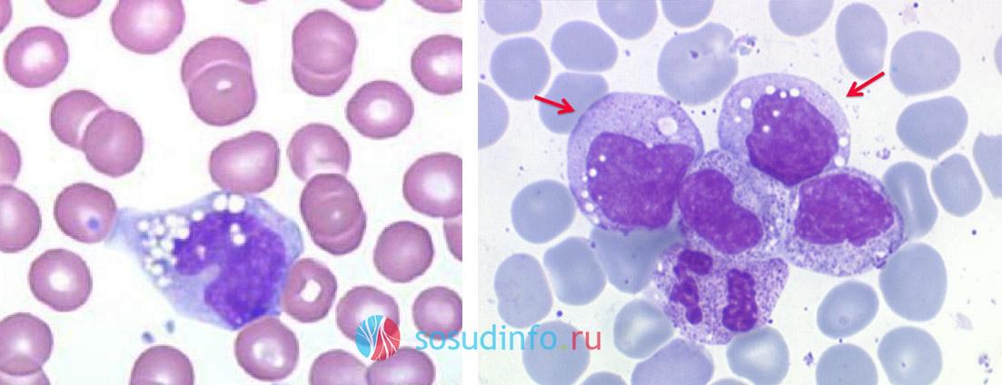Повышены моноциты в крови – предупреждение для организма. Моноциты повышены у взрослого в крови: что это значит, причины.