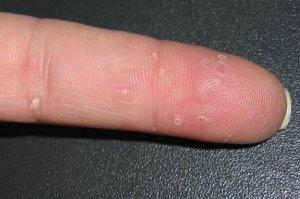 Водянистые пузырьки на руках чешутся – что это?