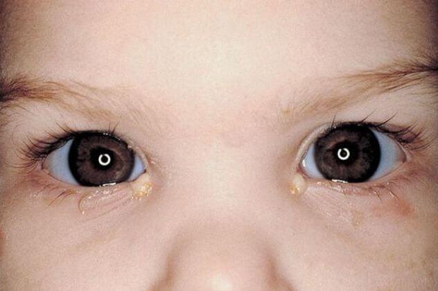 У ребенка конъюнктивит и зеленые сопли чем лечить